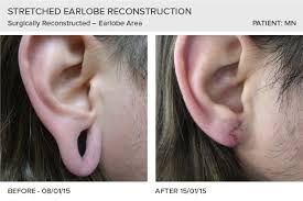 gauged ears before and after. stretched earlobe reconstruction gauged ears before and after