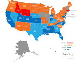 Gastric Sleeve Price Map Obesity Coverage