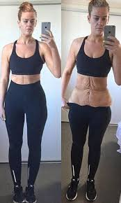 skin removal can make a huge difference for someone who s skin before and after gastric sleeve surgery bees a problem
