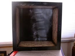 X Ray Light Board The X Ray Light Box