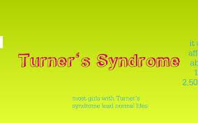 Turners Syndrome By Tayler Nordhausen On Prezi
