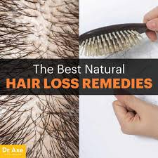 hair loss remes causes and