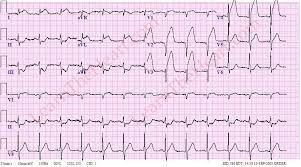Ecg Case 29 Question 1 Answer Learntheheart Com