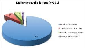 Eyelid Tumors At The University Eye Clinic Of Ioannina, Greece: A 30 ...