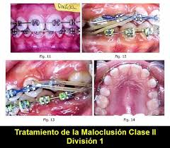 Tratamiento De La Maloclusion Clase Ii Division 1 Ovi Dental Dental Voss Bottle Plastic Water Bottle