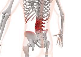 「ぎっくり腰 フリー素材」の画像検索結果