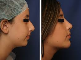 Chin Implant Size Chart Nose Chin Cheek And Facial Reshape Augmentation