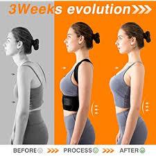 Buy <b>Adjustable Back Posture</b> Corrector for Women & Men with Spine ...