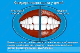 Кандидоз полости рта у детей причины симптомы лечение