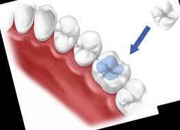 Dental Inlay Dental Inlays Onlays In Fulham Hammersmith Dentist In