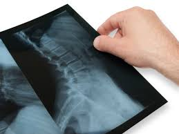 Image result for Alternative Scoliosis Treatment - Promising Technologies Lead The Way