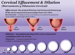 Dilation Chart Fingers Cervical Dilation Charts Dare Alla Luce Doula
