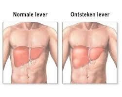 symptomen leverfunctiestoornis