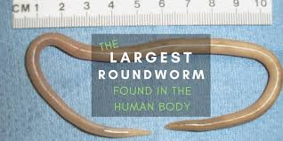 Ascariasis Roundworms Ascaris The Largest Roundworm Are There Worms Living In