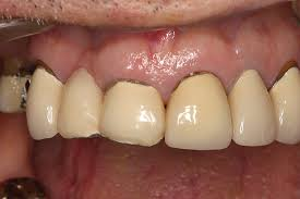 """A """"Smart Ceramics"""" System for Expanded Indications   Inside <b>Dentistry</b>"""