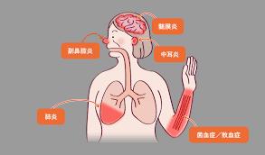 副 鼻腔 炎 コロナ