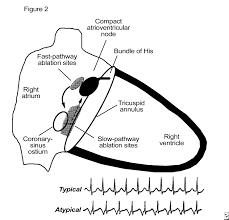 ear plug wiring diagram ear image wiring diagram pollak switch wiring diagram pollak discover your wiring diagram on ear plug wiring diagram