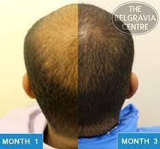 off belgravia hair loss treatment results