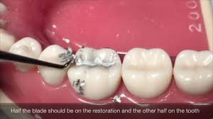 Class 1 Cavity Design Class I Amalgam Cavity Preparation Restoration
