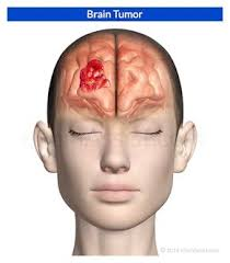 symptomen tumor
