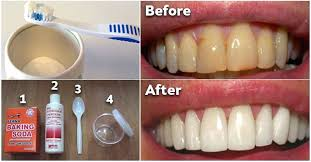 how to remove tartar from teeth with baking soda how to get rid of plaque and