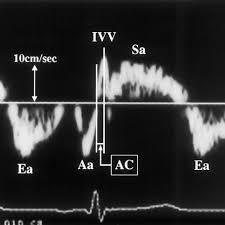 Myocardial velocities by tissue Doppler imaging. Sa, peak myocardial... |  Download Scientific Diagram