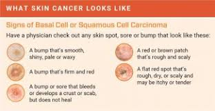 Mole Chart For Skin Cancer How To Detect Skin Cancer Roswell Park Comprehensive