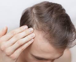 hair loss and ferritin deficiency