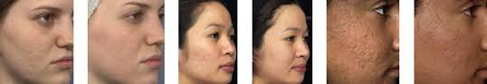 Acné behandeling Rotterdam   Dermarose acné specialist   Gratis consult