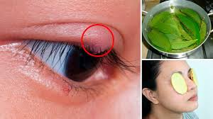 how to get rid of a sty stye 4 effective home remes
