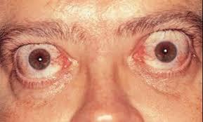 Eyes, Bulging - Eye Disorders - Merck Manuals Consumer Version