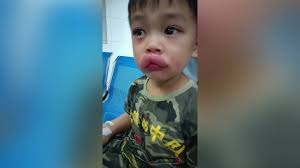 chinese boy s lips swell mively