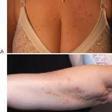treatment of dermais herpetiformis