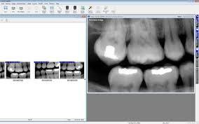 Dental Charting Software Maxident Digital Charting