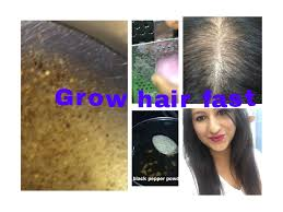Best Home Remedy For Hair Regrowth For Bald Hair Patches Not For