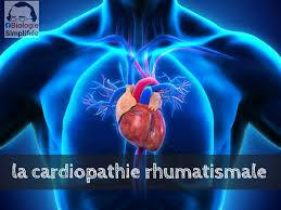 """Résultat de recherche d'images pour """"cardiopathie rhumatismale"""""""
