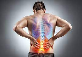 What is Sciatica? : Integrated Spine and Pain Services: Interventional Pain  Management Specialists