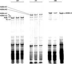 sds agarose gel electropsis