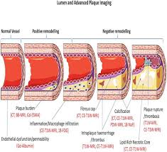 coronary and carotid imaging