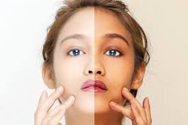 Light Skin In Japanese Culture Asias Addiction To Whiter Skin Runs Deep But The Backlash