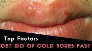 fever blister on lip best cold sore causes