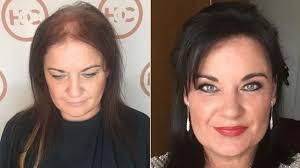Male Pattern Baldness In Women Stunning Hair Loss What Is Femalepattern Baldness BBC News