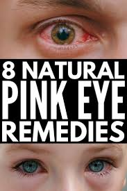 Home Remedies for Pink Eye: 8 Natural Remedies for Pink Eye that ...