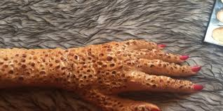 Fear Of Patterns Inspiration What Is Trypophobia A Disgust More Than Fear Stillunfold
