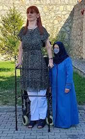 Dünyanın en uzun kadını Rumeysa: Farklı olmak kötü bir şey değil - Yurt  haberleri