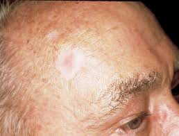 Tumor feels hard, is well defined, and is asymptomatic. Basal Cell Carcinoma The Skin Cancer Foundation