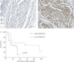 Most mesotheliomas are thought to be related to asbestos exposure. Aminopeptidase N Cd13 As A Potential Therapeutic Target In Malignant Pleural Mesothelioma European Respiratory Society