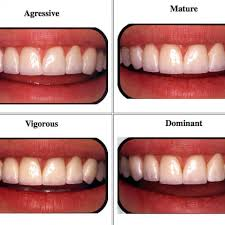 How To Choose The Best Veneers For Your Face Shape Rifkin