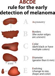 Mole Chart For Skin Cancer Learn The Abcdes Of Skin Cancer Brigham Health Hub