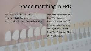 Shade Selection In Fpd